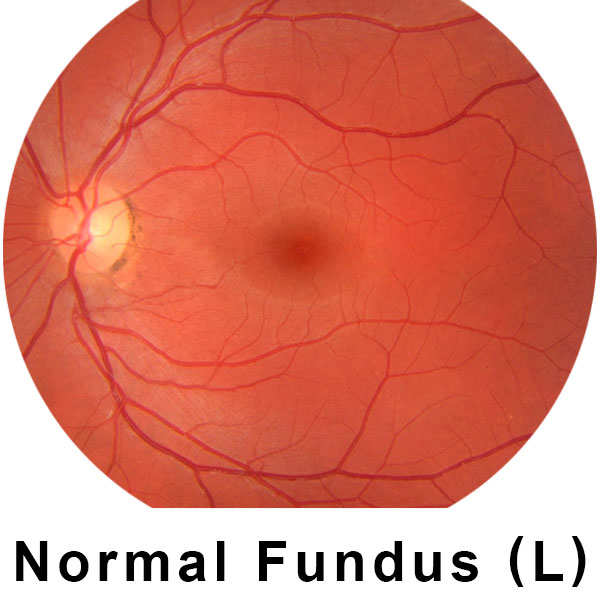 Retina with normal fundus